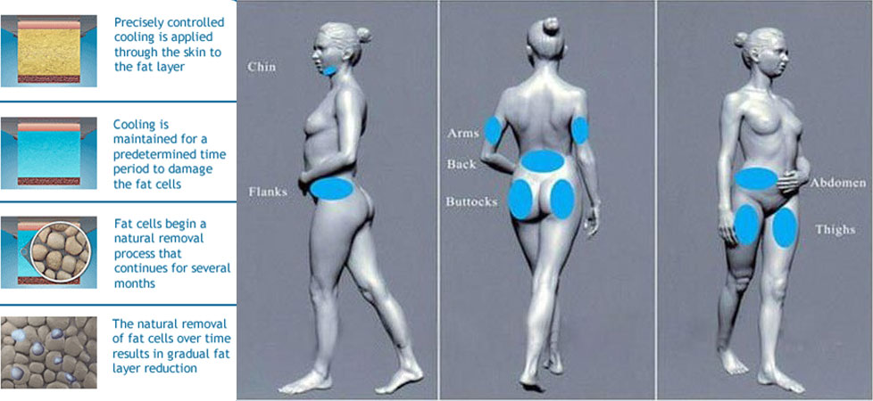 Suitable areas for Cryolipo